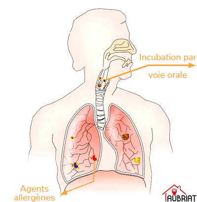 Schéma d'une voie respiratoire et des poumons attaqué par le mérule